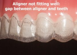 Invisalign not fitting properly
