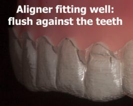 Invisalign fitting well