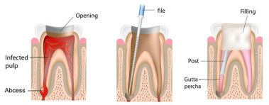 Root canal explained diagram